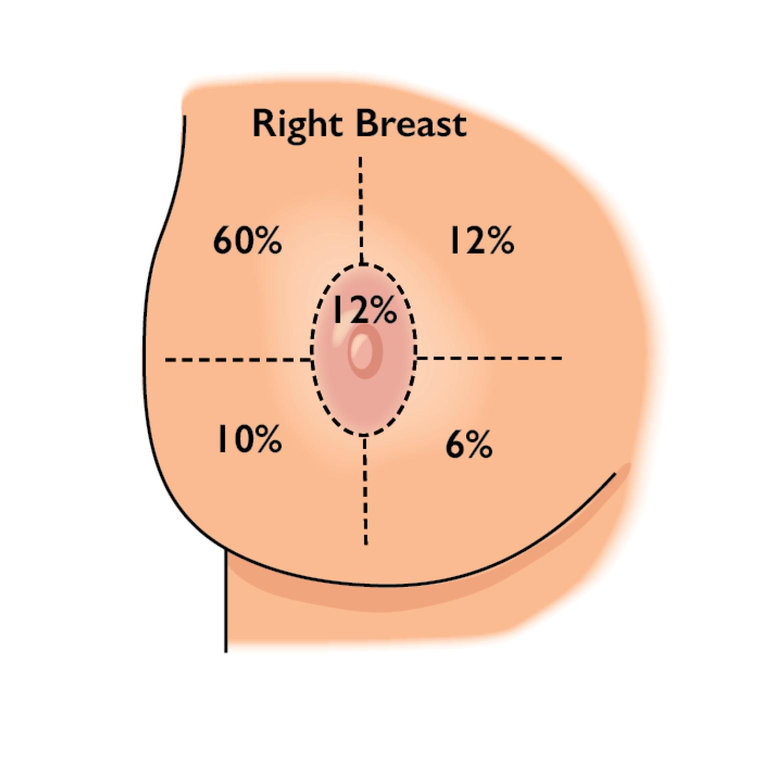 Breast Cancer Quadrant Image.png