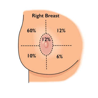Breast Cancer Quadrant Image.png